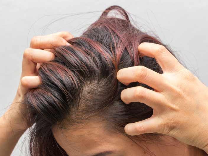 <strong>2.Saç derinizi koruyun</strong>
