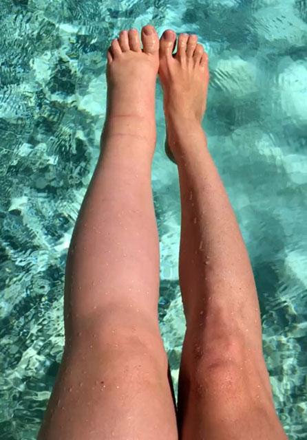 Bir bacağı diğerinin iki katı