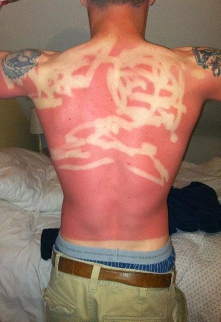 Güneşin acımasız davrandığı tatilciler