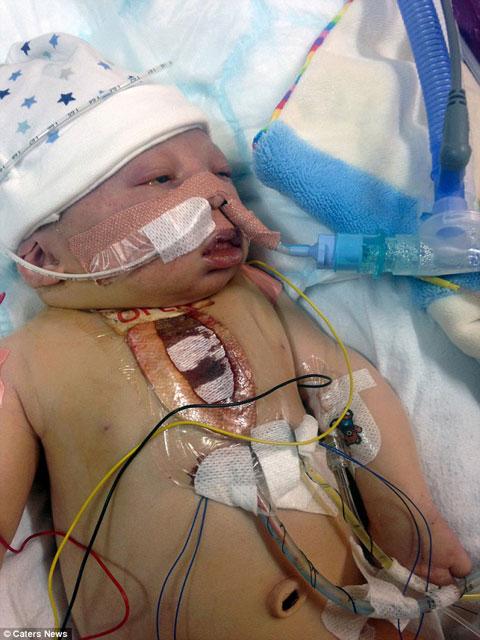 Yeni doğmuş bebeğe el yapımı kalp takıldı