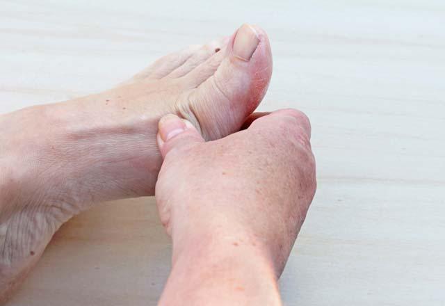 Dolama hastalığı belirtileri nelerdir? Tedavisi nasıl yapılır?