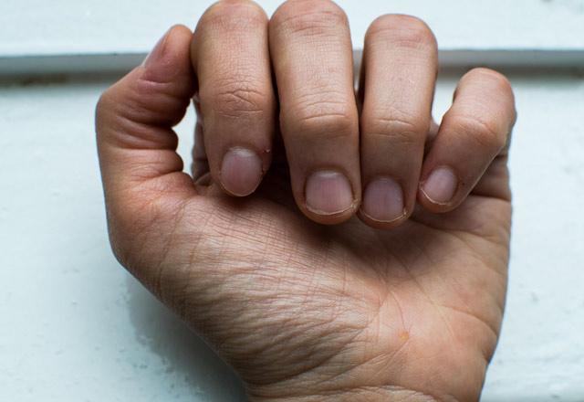 En sık görülen tırnak hastalıkları