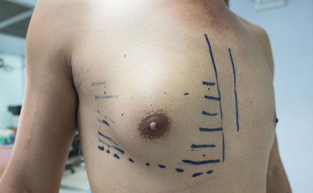 Erkeklerin vücutlarında dikkate almaları gereken belirtiler