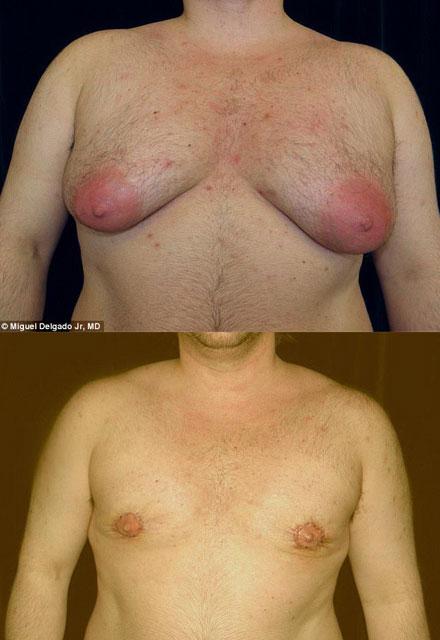 Erkeklerde jinekomasti ameliyatı yayılıyor