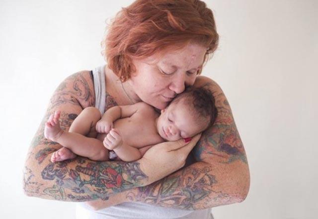 Treacher collins sendromlu bebeğin duygusal hikâyesi