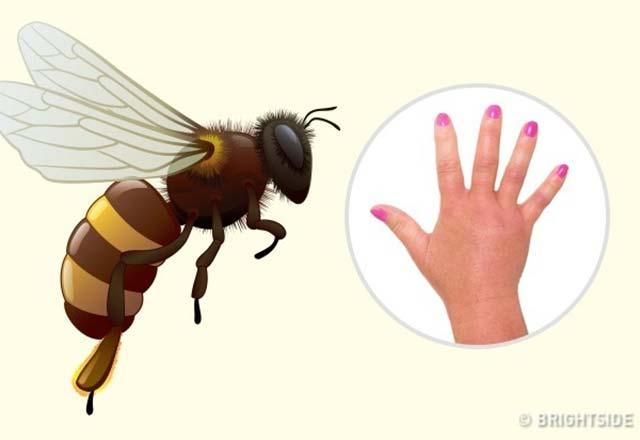 Tanımanız gereken böcek ısırıkları