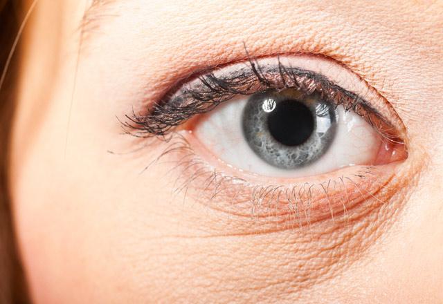 Göz çevresinde mor haleler ne anlama geliyor?