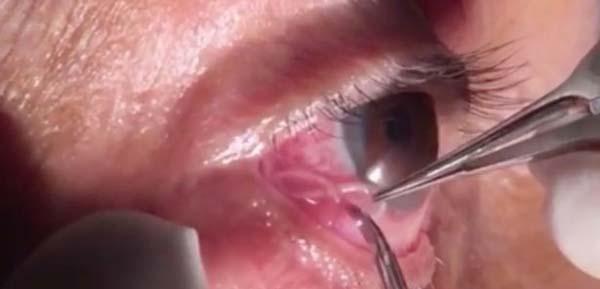 Gözünde 15 santimetrelik solucan çıktı!