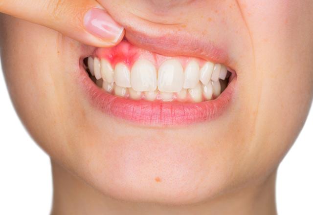 Diş eti kanaması hangi hastalıklara işaret ediyor?