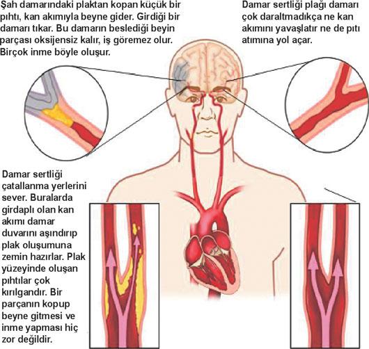 Kardiyoloji. Kalp valfleri - insan yaşamı