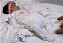 Anüssüz doğan İlkin bebek sağlığına kavuştu