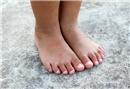 Çocuklarda görülen ayak mantarı tedavisi nasıl olur?