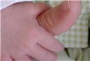 Çocuk romatizması nedir?
