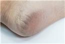 Topuk çatlaklarına bitkisel tedavi önerileri…
