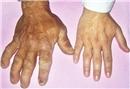 Akromegali nedir?