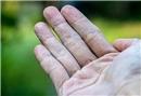 Soğuk havalarda kuruyan ve çatlayan eller için öneriler