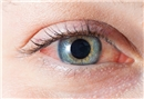 Dikkat bu hastalık göz kaybına neden oluyor!