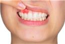 Dişlere zarar veren beslenme hataları