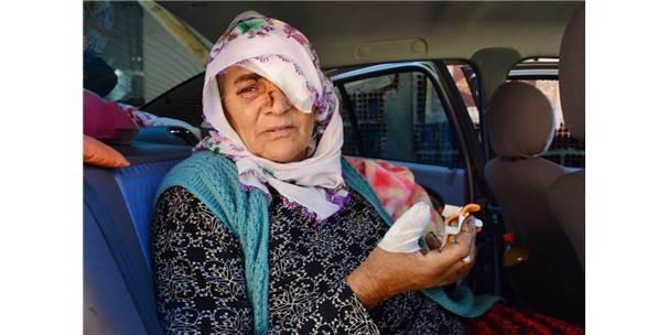 Yaşlı Kadının Bulduğu Kutu Elinde Bomba Gibi Patladı