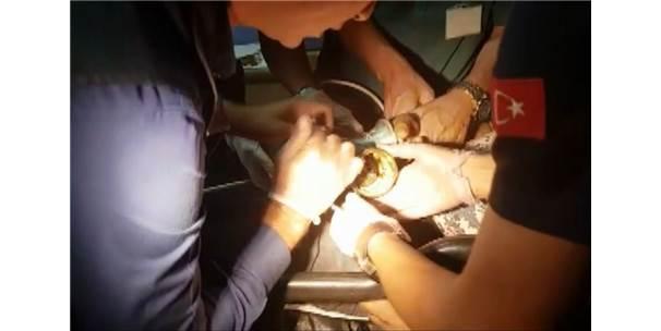 Kıyma Makinesine Kaptırdığı Elini İtfaiye Çıkarttı