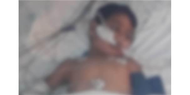 Küçük Çocuğun Üstüne İnşaattan Beton Parçası Düştü