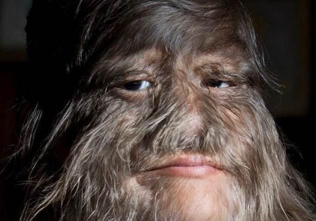 Dünyanın en tüylü kızı aşkı bulduktan sonra yüzünü tıraş etti