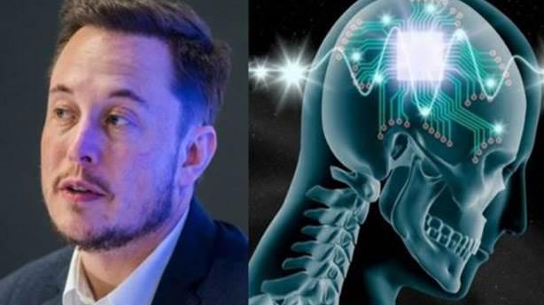 Neuralink nedir? Düşünce gücüyle makineleri kontrol etmeye hazır mısınız?
