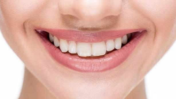 8- Kıvrımsız üst dudak