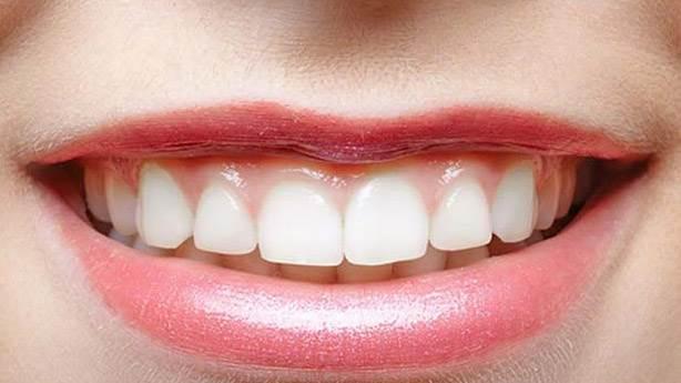 10- Çok ince üst dudak