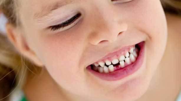 Süt dişleri tedavi edilir mi?