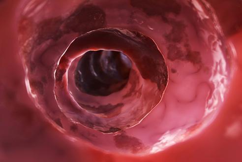 Özellikle kanser taramalarında son dönemde en önemli yöntemlerinden birisi kolonoskopidir.