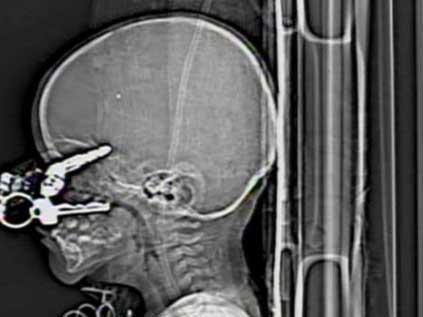 Anahtar beynine saplandı!