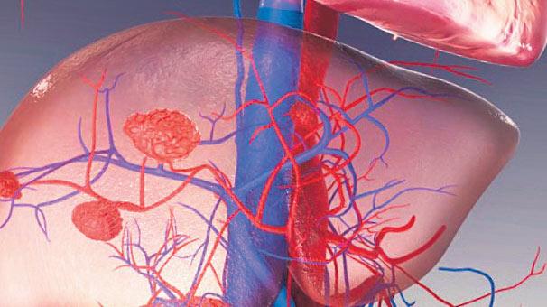 Karaciğerin evde ve yurt dışında tedavisi