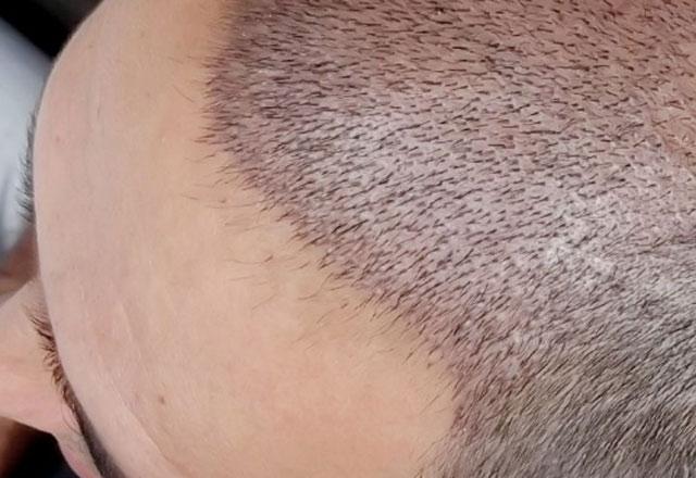 Saç ektireceklere uyarı!