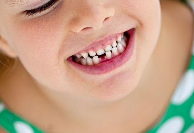 Çocuğunuzun süt dişlerini atmayın!