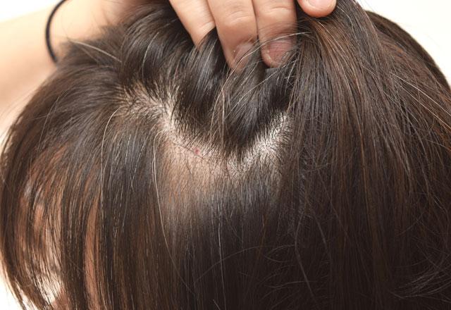 Saç derisindeki sivilcelerin nedenleri