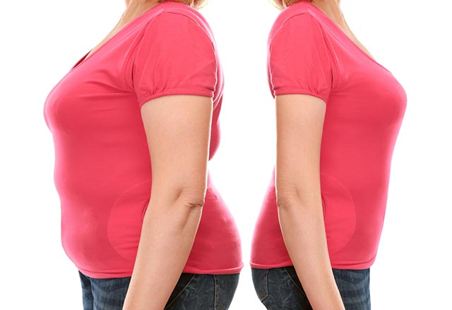 Tüp mide ameliyatı şeker hastalığını da düzeltiyor