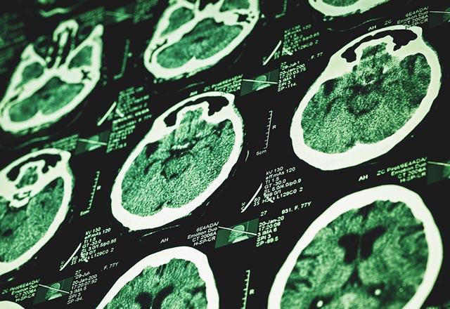 Ms Hastalığının 6 Belirtisi Genel Sağlık Haberleri