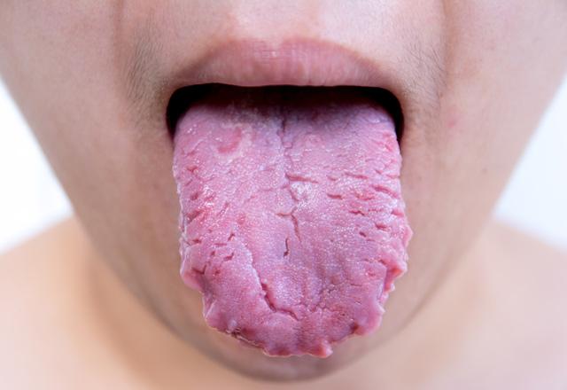 Dil yarası neden olur?