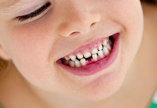 Çocuklarda okul öncesi diş sağlığı