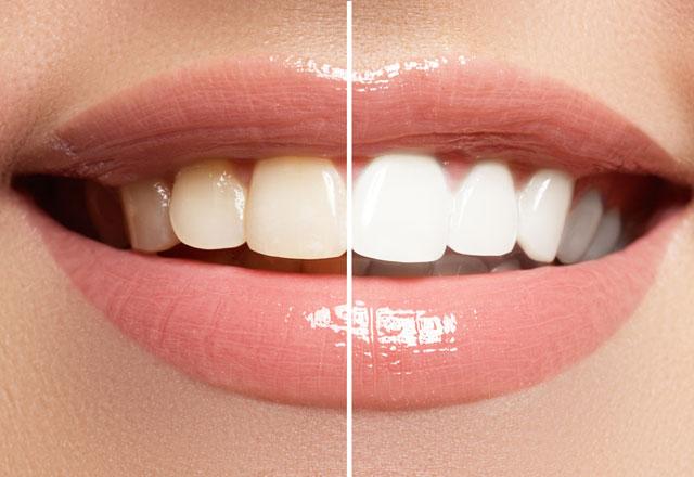 Doğal diş beyazlatma yöntemi Zerdeçal