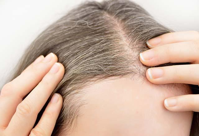 Saçınızın erken beyazlamasını doğal yollarla önleyin
