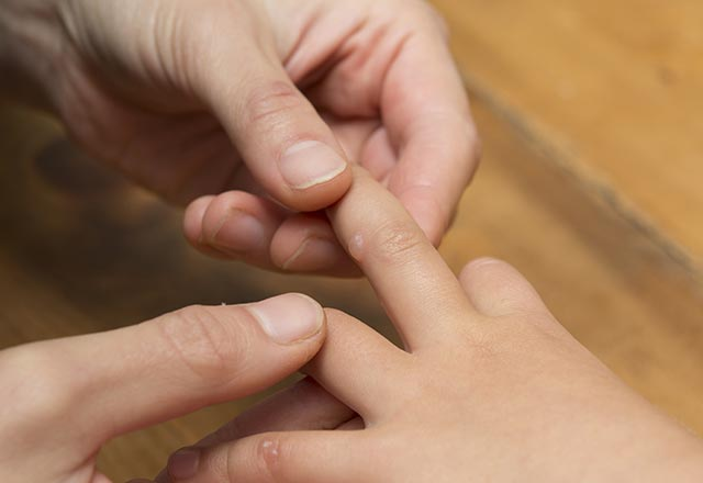 El ayak ağız hastalığından korunmanın yolları