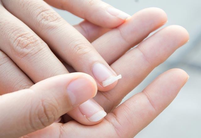 Tırnak tırnaklarının altına ve büyümeye - tedavi ve önleme yöntemleri