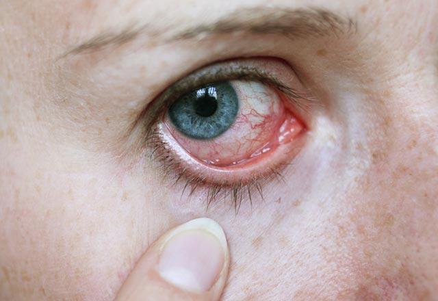 Göz Taşı Nedir Gözde Taş Nasıl Tedavi Edilir Genel Sağlık Haberleri