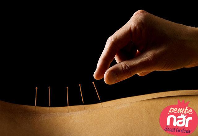 Akupunktur nedir, hangi hastalıklara iyi gelir?