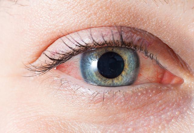 Gözlerinizi bahar alerjisinden koruyun