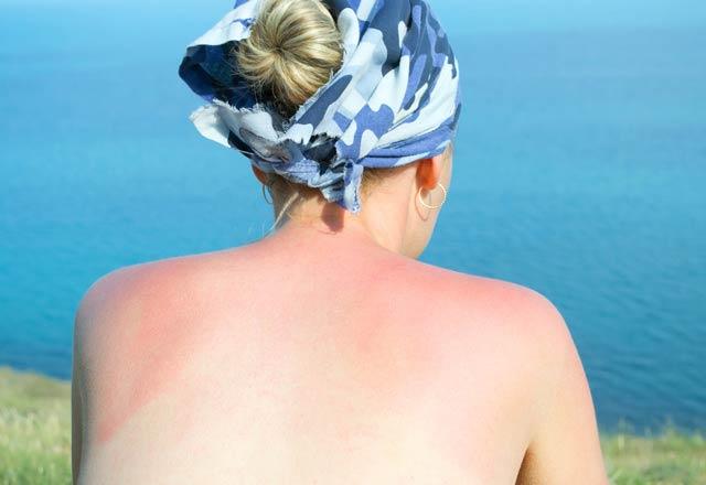 Güneş Yanığı Yüzü: Tedavi ve İyileştirme