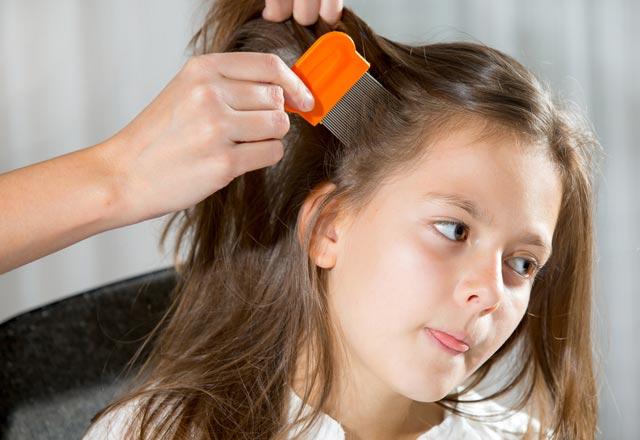 Çocuklarda Bitlenme ve Bitlerden Kurtulma Yolları 8