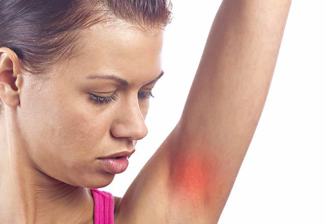 Koltuk altı ve kasık bölgesindeki yaraları ihmal etmeyin!